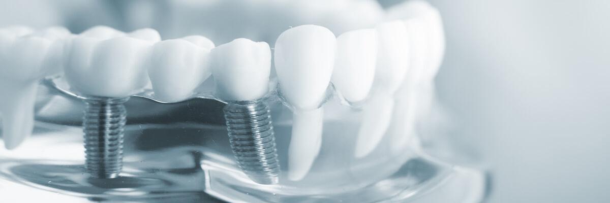 preguntas frecuentes sobre implantes dentales