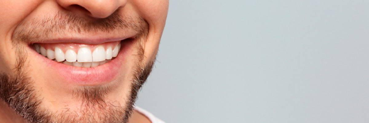 Tipos de implantes para dientes