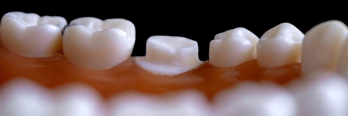 Cuándo es necesaria la implantología dental