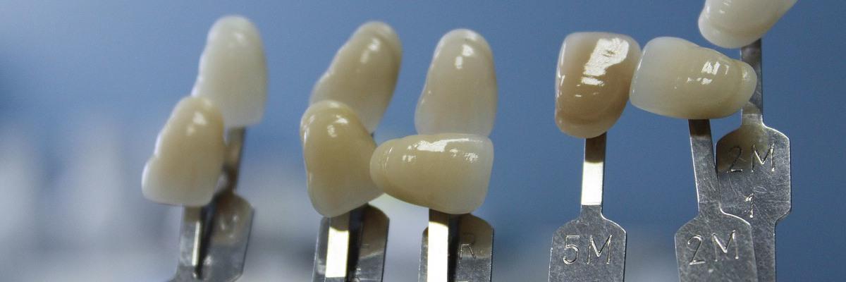Ventajas e inconvenientes de los tratamientos para reponer dientes