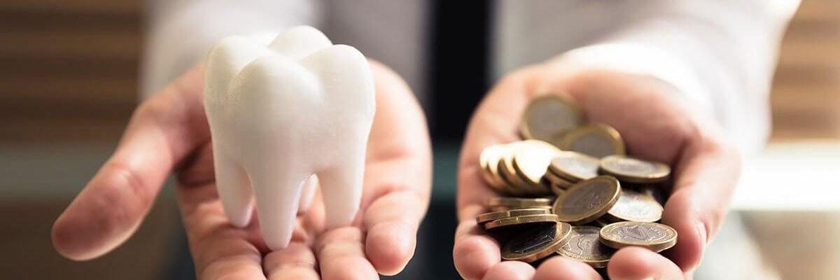 Precio implantes dentales Huelva