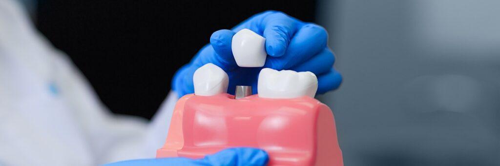 Implantes dentales en Lepe e Isla Cristina